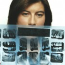 Dentist Examining an X Ray of Teeth
