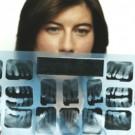 Dentist Examining an X Ray of Teeth