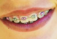 Health Care Reform and Teeth